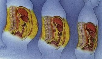 Indice de masse grasse