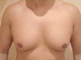 Brûler graisse pectoraux homme: la cause